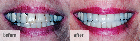 Before and after smile photo